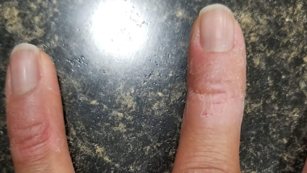 More skin damage caused by dermatillomania
